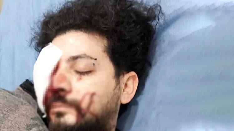 Genç şarkıcı Şahan Dinç'in gözünü kaybettiği silahlı kavganın şüphelileri tutuklandı